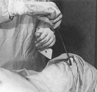 Mumifizierung Ablauf
